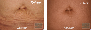Skin tightening near New Orleans, LA - Before & after gallery image