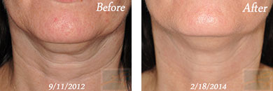 Skin tightening - Before after gallery image 9