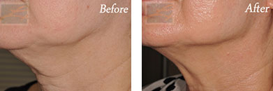 Skin tightening - Before after gallery image 10