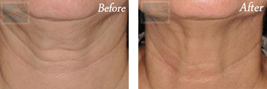 Skin tightening - Before after gallery image 11