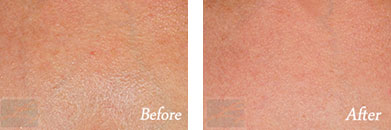 Skin tightening - Before after gallery image 12
