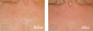 Skin tightening - Before after gallery image 13