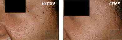 Spot Laser - Before and After Case 2