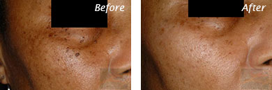 Spot Laser - Before and After Case 3