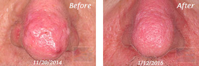 Facial Redness and Rosacea - Before and After Case 4