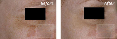 Texture, Pores & Discoloration - Before and After Case 24