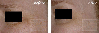 Texture, Pores & Discoloration - Before and After Case 25