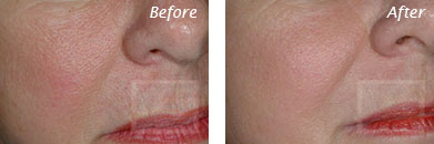 Texture, Pores & Discoloration - Before and After Case 27