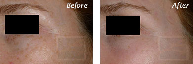 Texture, Pores & Discoloration - Before and After Case 29