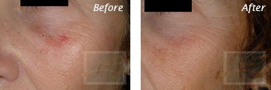 Facial Redness and Rosacea - Before and After Case 6