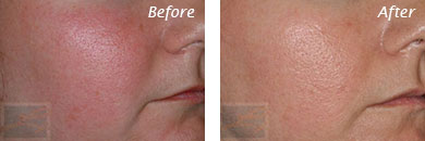 Facial Redness and Rosacea - Before and After Case 7