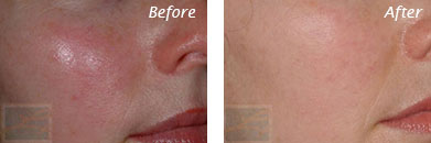 Facial Redness and Rosacea - Before and After Case 8
