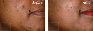 Texture, Pores & Discoloration - Before and After Case 36