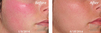 Facial Redness and Rosacea - Before and After Case 1