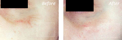 Texture, Pores & Discoloration - Before and After Case 37