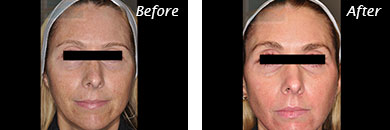 Texture, Pores & Discoloration - Before and After Case 38