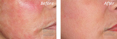 Facial Redness and Rosacea - Before and After Case 9