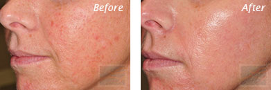 Texture, Pores & Discoloration - Before and After Case 41