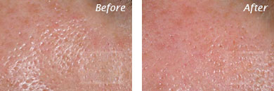 Texture, Pores & Discoloration - Before and After Case 44