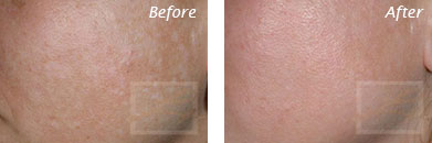 Texture, Pores & Discoloration - Before and After Case 45