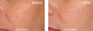 Texture, Pores & Discoloration - Before and After Case 50