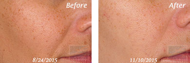 Texture, Pores & Discoloration - Before and After Case 51