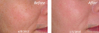 Texture, Pores & Discoloration - Before and After Case 52