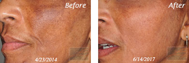 Skin care - Before after gallery image 5