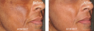 Skin care - Before after gallery image 4