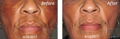 Skin care - Before after gallery image 3