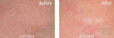 Texture, Pores & Discoloration - Before and After Case 12