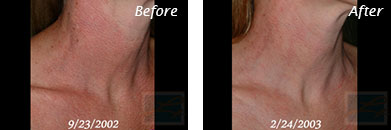 Facial Redness and Rosacea - Before and After Case 3